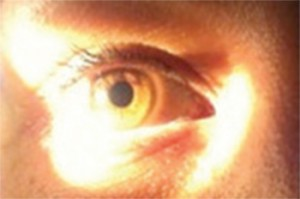 Figure 1. Oblique Flashlight Test. Uniform illumination of the iris indicates a deep anterior chamber