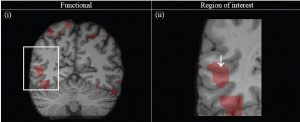 Figure 4: In vivo structural MR and fMR results from subject 2 (left hemisphere). (i) Coronally oriented slice through high-resolution MR image with overlaid functional activation map. The region of interest has been highlighted (white box). (ii) Enlarged view of the highlighted area in (i) showing co-localisation of functional activation and putative anatomically defined V5/MT identified in Experiment 1 (white arrow).